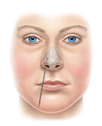 Nasal airway obstruction | ENT Stryker