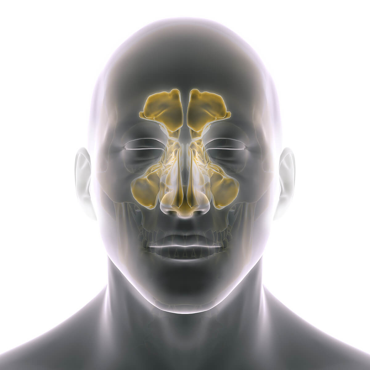 Condition Sinusitis